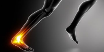 Don't Let Heel Pain Slow You Down. Seek Treatment For Achilles Tendonitis.